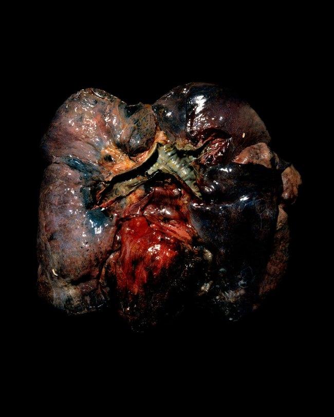 Raphaël Dallaporta. 'Fragile, Cardiopulmonary system' 2010