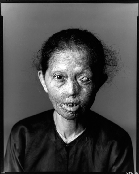 Richard Avedon. 'Napalm Victim #1, Saigon, South Vietnam, April 29, 1971' 1971