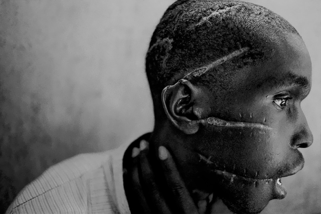 James Nachtwey. 'A Hutu man who did not support the genocide had been imprisoned in the concentration camp, was starved and attacked with machetes.  He managed to survive after he was freed and was placed in the care of the Red Cross, Rwanda, 1994' 1994