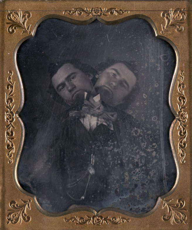 Unidentified American artist. 'Two-Headed Man' c. 1855