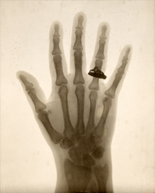 Unknown maker (American). 'Hand X-Ray' 1897