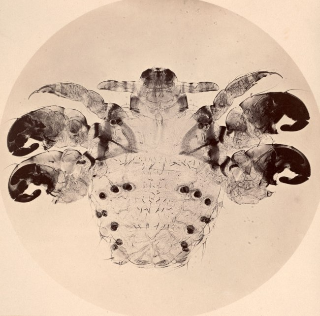 Joseph Javier Woodward (American, 1833–1884). 'Photomicrograph of a Crab Louse' c. 1864-65
