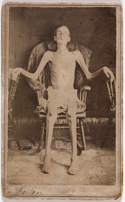 J. W. Jones (American, active Orange, Massachusetts, 1860s) 'Emaciated Union Soldier Liberated from Andersonville Prison' 1865