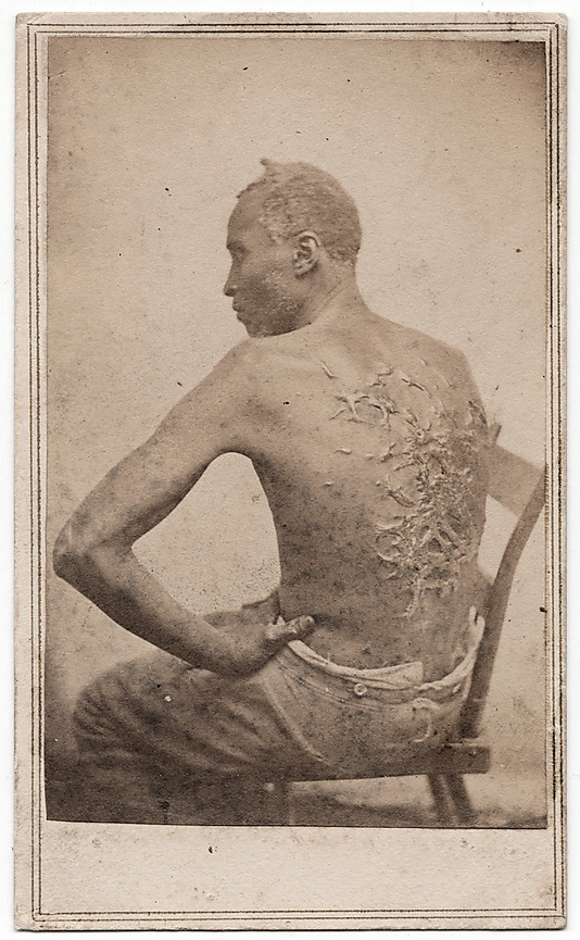 Attributed to McPherson & Oliver (American, active New Orleans and Baton Rouge, Louisiana, 1860s) 'The Scourged Back' April 1863