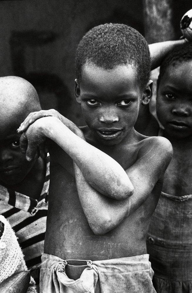Jean Mohr. 'A young Mozambican refugee, Muhukuru clinic, Tanzania, 1968'