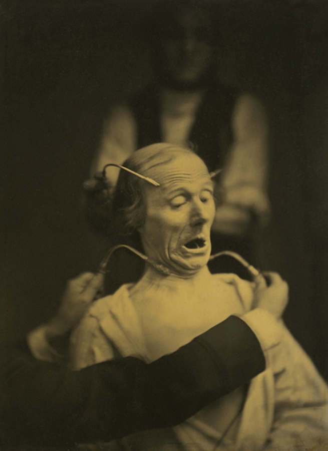 "Dr Guillaume-Benjamin-Amant Duchenne (de Boulogne). 'Figure 63, ""Fright"" from ""Mécanisme de la physionomie humaine (Mechanism of human physiognomy)"" (1862)' 1854-1855"