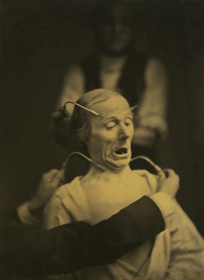 """Dr Guillaume-Benjamin-Amant Duchenne (de Boulogne). 'Figure 63, """"Fright"""" from """"Mécanisme de la physionomie humaine (Mechanism of human physiognomy)"""" (1862)' 1854-1855"""