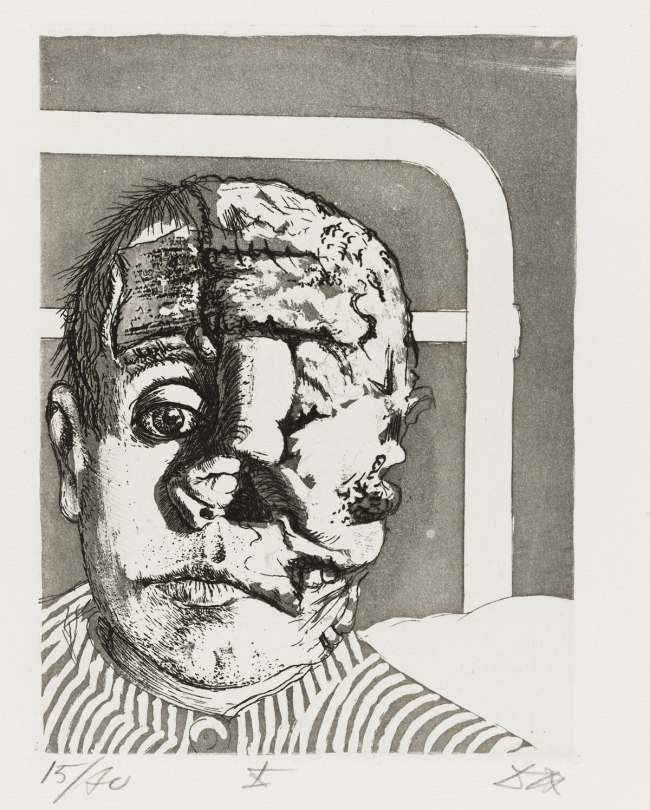 Otto Dix Skin Graft (Transplantation) from the portfolio War (Der Krieg), 1924
