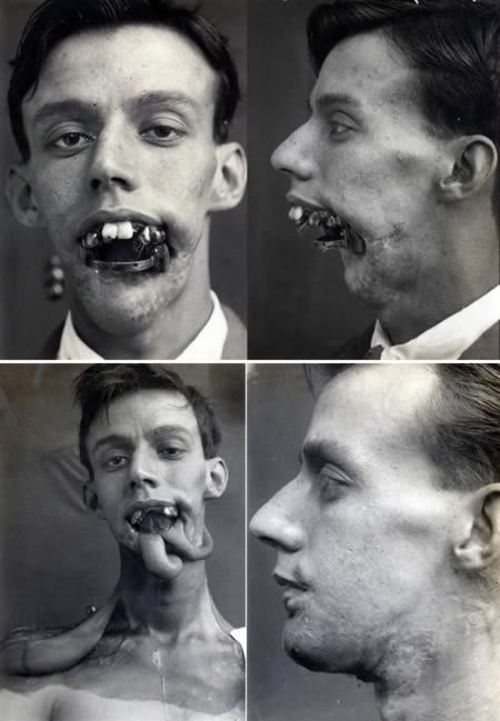 Facial reconstruction WW1