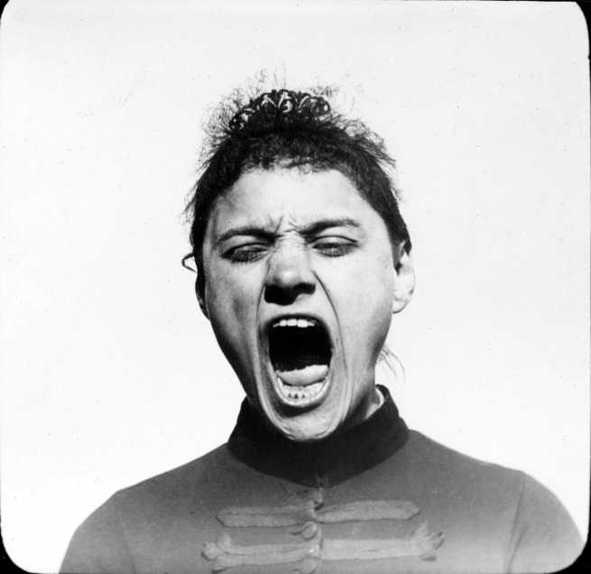 Verm. Albert Londe (1858-1917) 'Hysterics' Nd