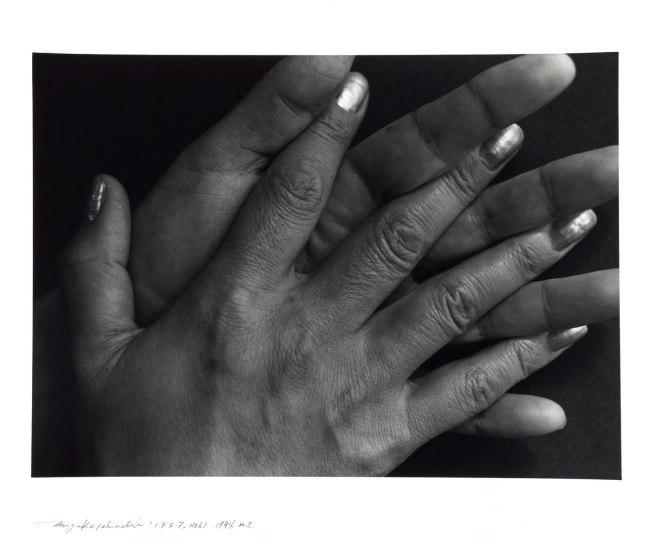 Ishiuchi Miyako. '1·9·4·7 #61' 1994