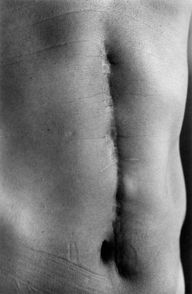 Ishiuchi Miyako. 'Scars #27 (Illness 1977)' 1999