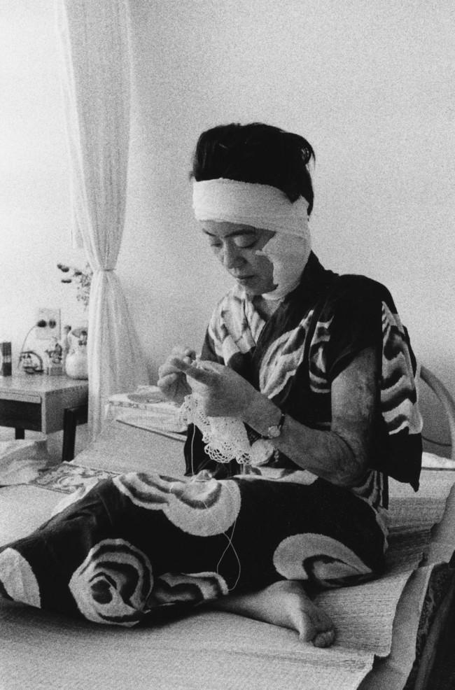 Ken Domon. 'Paziente in ospedale [Hospital patient]' 1957