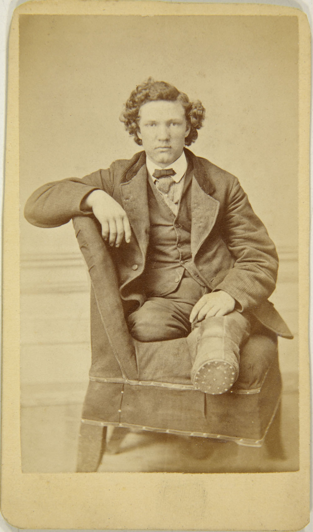 Unknown Photographer American Carte De Visite Of Amputee On Chair Late