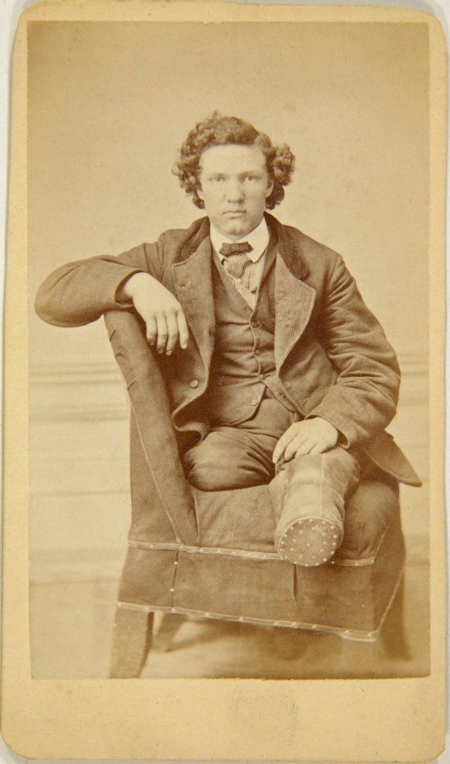 Unknown photographer (American) 'Carte de visite of amputee on chair' late-19th century
