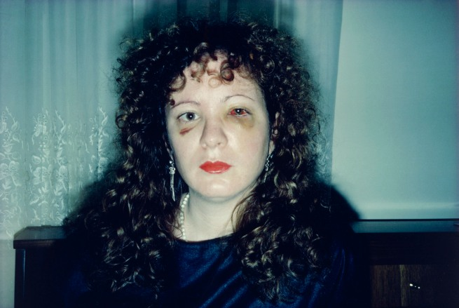Nan Goldin (American, born 1953) 'Nan One Month After Being Battered' 1984