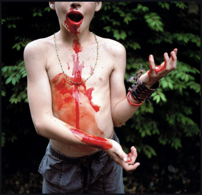 Sally Mann (American, born 1951) 'Bloody Nose' 1991