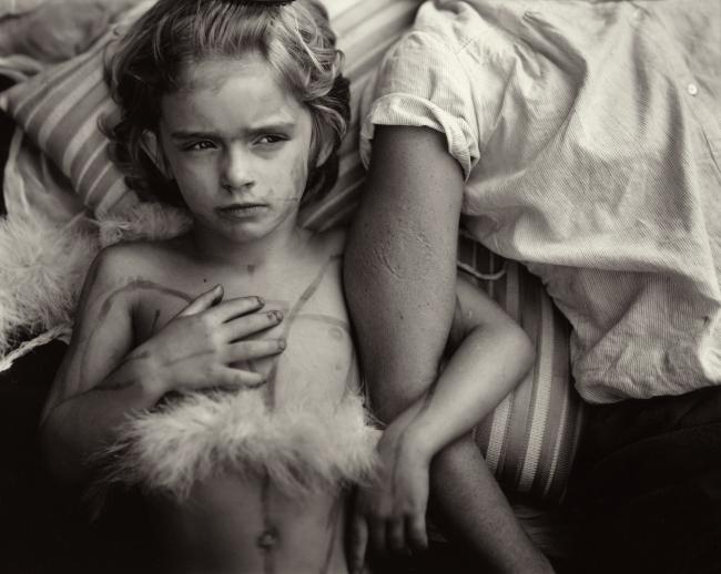 Sally Mann(American, b. 1951) 'Jessie Bites' 1985