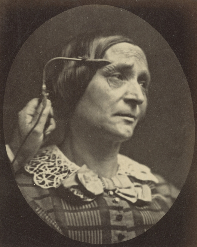 Guillaume-Benjamin Duchenne (French, 1806-1875) 'Figure 27, The Muscle of Pain' Negative 1854-1856; print 1876 (detail)