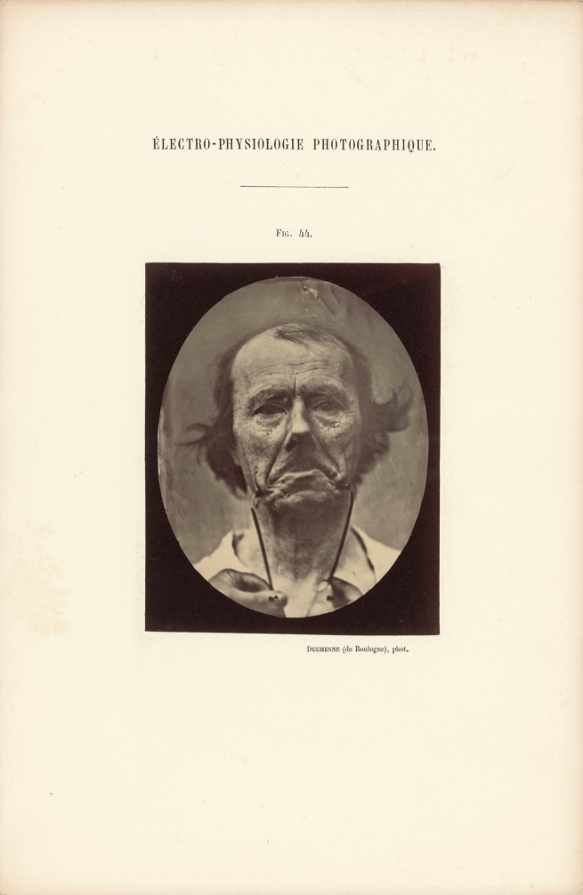Guillaume-Benjamin Duchenne (French, 1806-1875) 'Figure 44, The Muscle of Sadness' Negative 1854-1856; print 1876