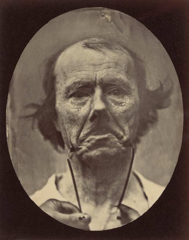 Guillaume-Benjamin Duchenne (French, 1806-1875) 'Figure 44, The Muscle of Sadness' Negative 1854-1856; print 1876 (detail)