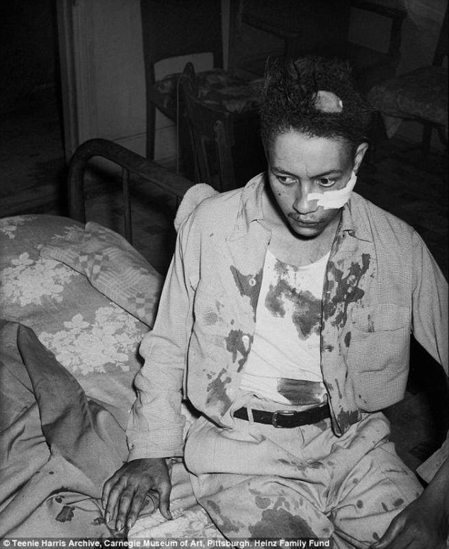 """Charles """"Teenie""""Harris (1908-1998) 'John Davis after being beaten by police officer Dan McTague, in his home at 1303 Wylie Avenue, Hill District, August 1951' 1951"""
